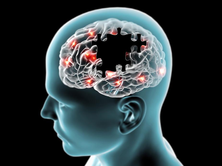 Nuramin for treatment of Parkinson