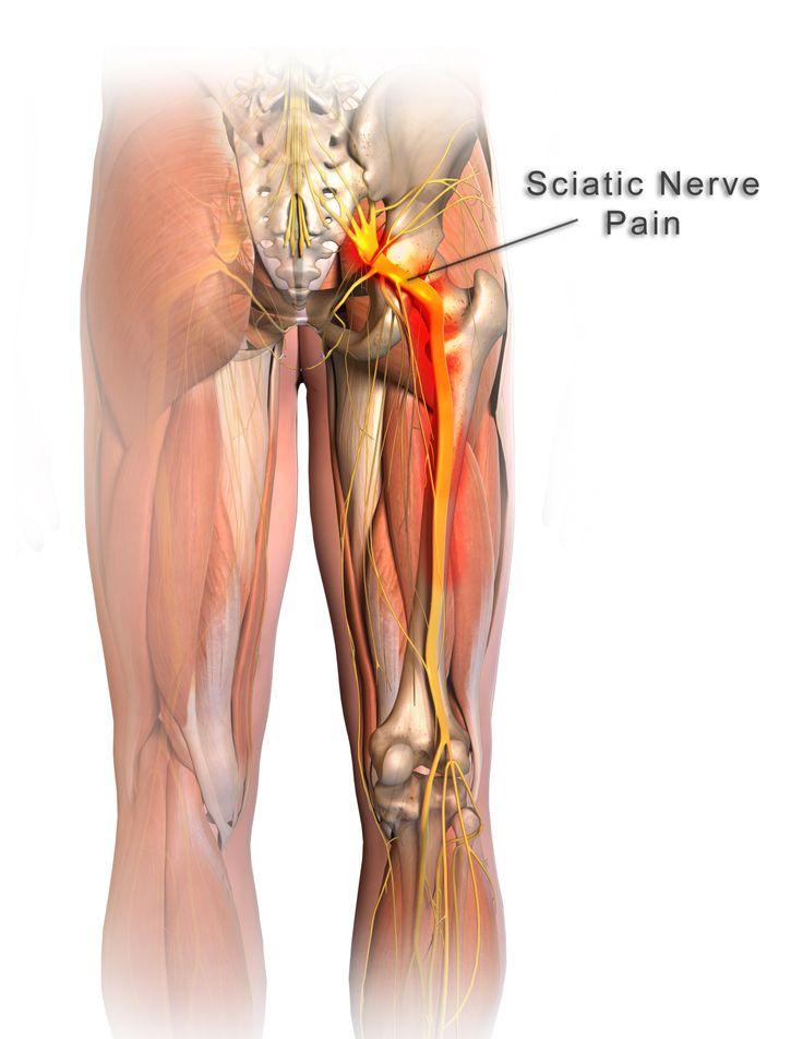 Calmya works wonder on sciatica pain
