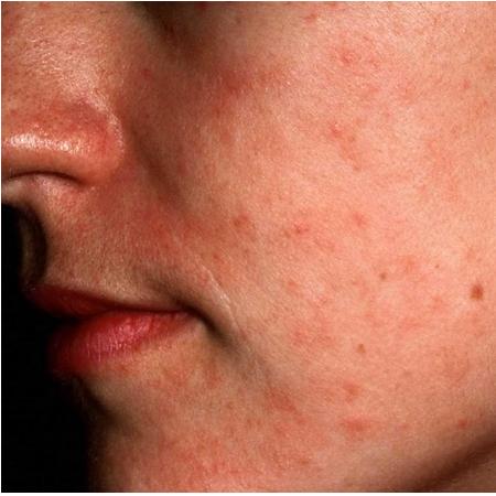 Glowysy ideal to treat Eczema
