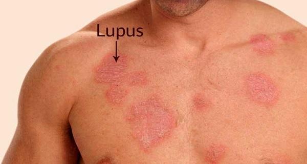 Immunoturm – Your Healthy Solution to Combat Lupus