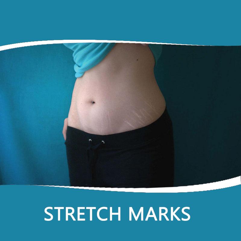 dermaturm for stretch marks removal