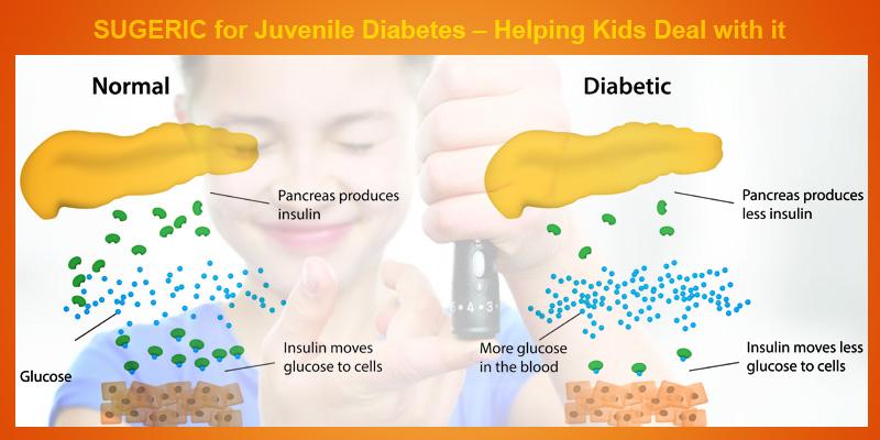 Sugeric for Juvenile Diabetes control organically