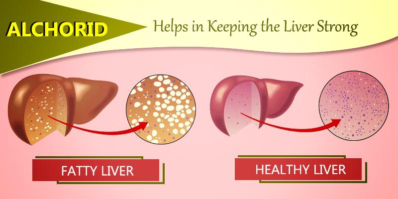 Fight Fatty liver with Alchorid