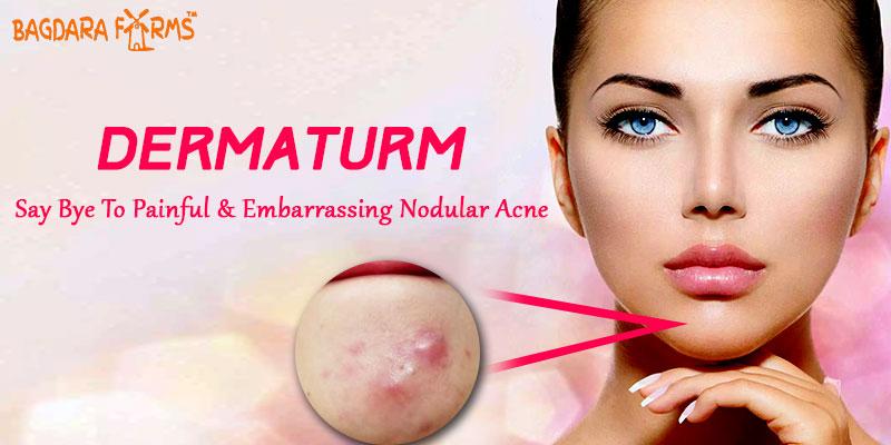 Dermaturm for nodular acne treatment