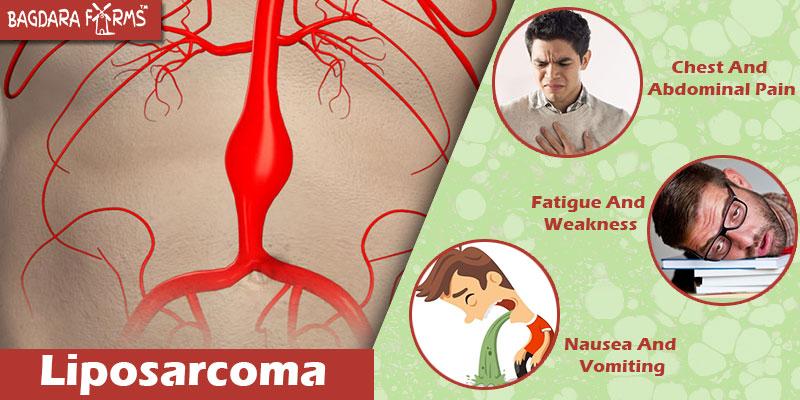 Kick Out Liposarcoma With Curcumin