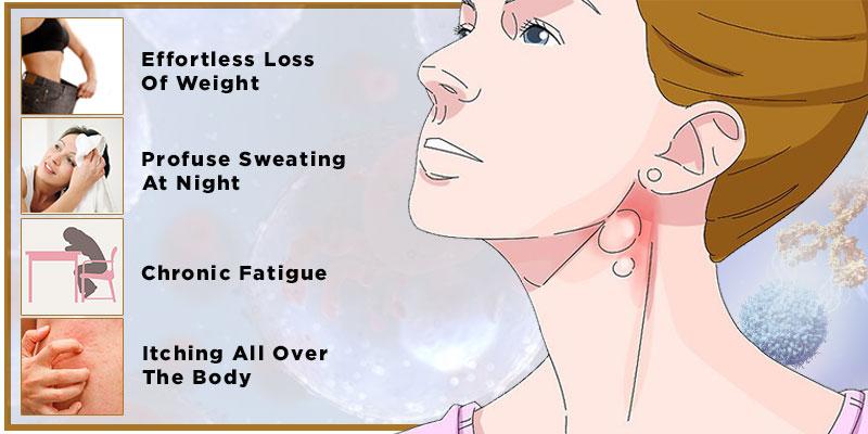 Chemopreventive Action Of Curcumin Against Lymphoma