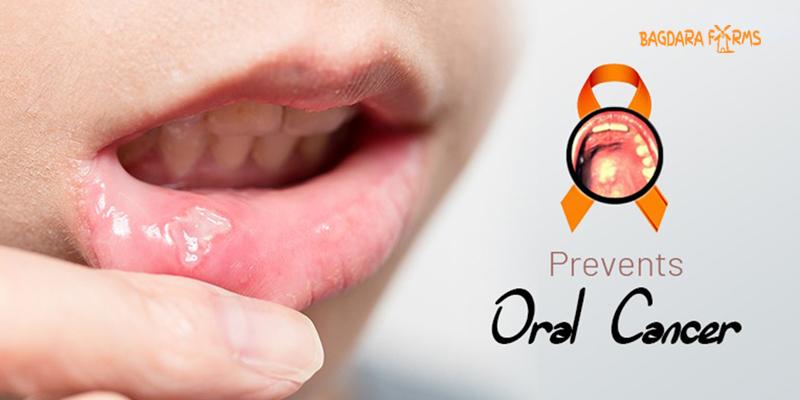 मुंह के कैंसर का इलाज